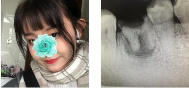 成都博愛口腔整形種植牙齒案例 我的種植牙適應的挺好的