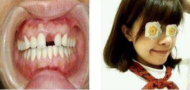 成都極光口腔整形牙冠案例 術后一個月,和自己的牙齒無異