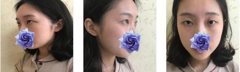武漢華美整形小眼綜合案例 術后3個月,素顏也是美美的