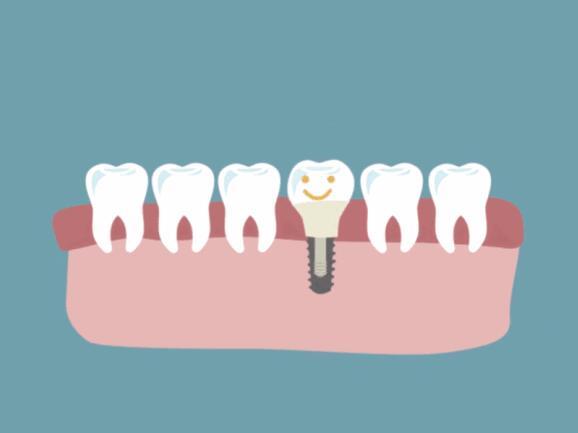 这7种人群并不适合做种植牙