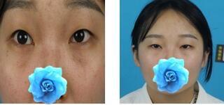 鄭州華領整形楊瑞國醫生眼部綜合案例 覺得我的雙眼皮做的很成功