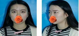 鄭州華山整形胡斌醫生切開雙眼皮案例 術后第四個月對比