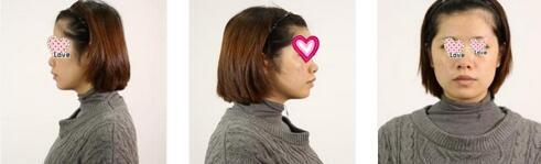 廣州曙光整形張小蕓醫生玻尿酸+肉毒素瘦臉案例 像變了一個人