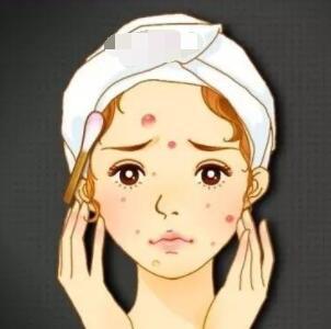 激光祛痘在现代医美整形中很流行