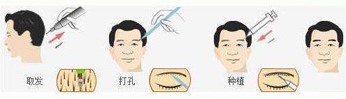 福州眉毛种植2020的价格是多少