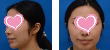 南寧韓成整形M唇成形術案例 術后3天了 恢復還不錯