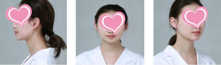 四川美萊整形玻尿酸注射隆下巴案例 術后2天的分享心得
