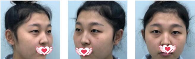 哈爾濱索菲整形做切開雙眼皮案例 術后4個月眼睛恢復得很自然