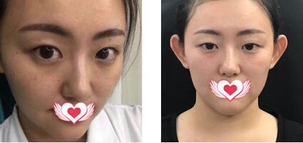 南寧華美整形做雙眼皮案例 反饋一下眼睛恢復變美心得體會+效果圖