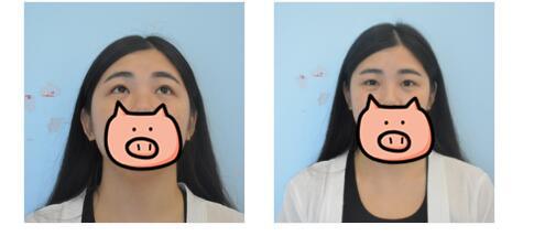 南寧夢想整形雙眼皮手術案例 稍微化點妝就很美