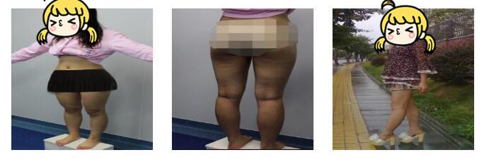 成都艾米麗整形吸脂瘦大腿案例 穿什么都好美