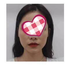 廣州曙光整形玻尿酸墊下巴案例 小細節讓你更美