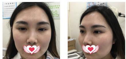 合肥光美整形做肉毒素瘦臉案例 術后四個月臉型變得美麗又有型