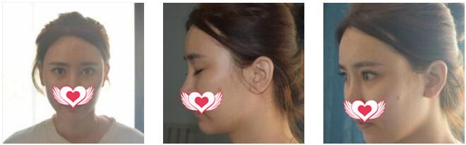 沈陽盛京尚美整形王超做自體脂肪全臉填充案例 術后分享效果圖
