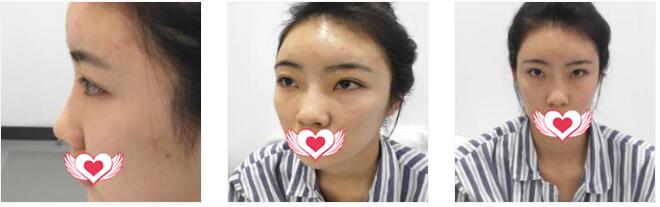 北京炫美整形徐學東整形做埋線雙眼皮案例 60天反饋下我的體驗感