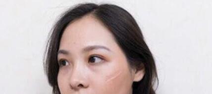 长沙亚韩整形激光祛疤案例 看看做了2次的效果