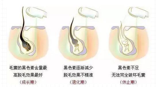 毛发生长有3个时期,在这个时期脱毛效果更显著