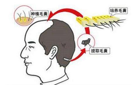 种植头发成功存活下来还会脱落吗