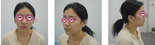 沈陽盛京尚美整形王超醫生自體脂肪全臉填充案例 術后對比圖欣賞