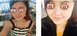 西寧韓美整形肉毒素瘦臉案例 術后一個月隨手一拍就是美照