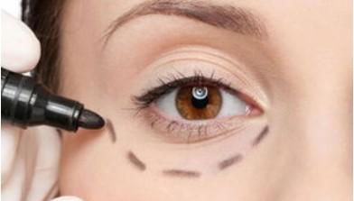激光去眼袋有效吗?激光去眼袋的优点