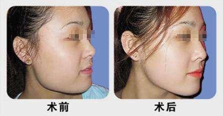 下颌角整形的优势有哪些呢