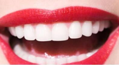 牙齒矯正手術后要應該怎么護理
