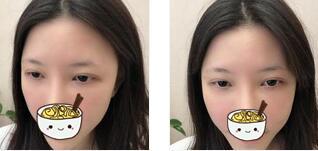 成都科发源整形眉毛种植案例 眉毛很立体,身边的朋友很羡慕