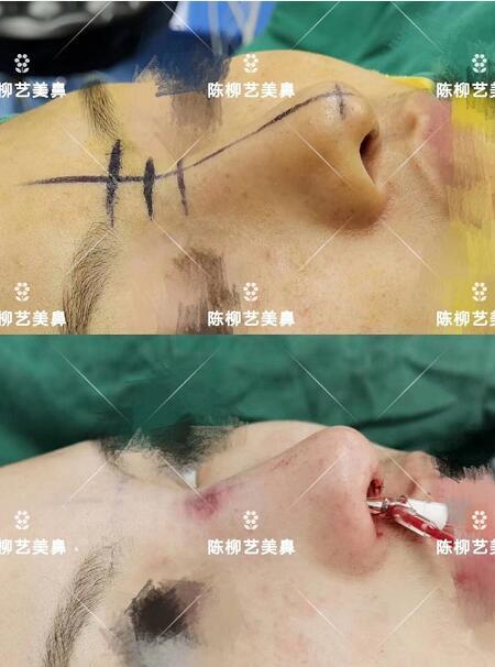 湖南韩美整形陈柳艺医生耳软骨综合隆鼻案例展示