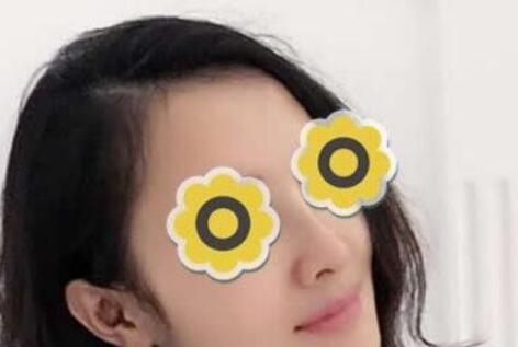云南华美美莱整形黄金龙医生隆鼻案例