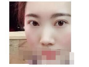 北京同仁医院许莲姬做双眼皮案例