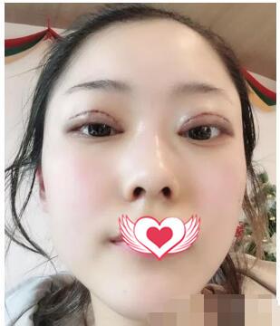 北京同仁医院做双眼皮案例