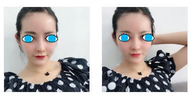 杭州甄美整形自体脂肪全脸填充案例