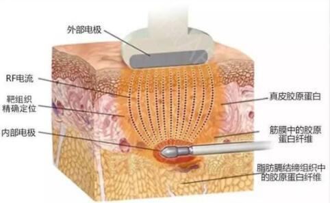射频除皱对皮肤会不会造成伤害