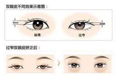 郑州双眼皮修复知名专家排行榜 仅供参考