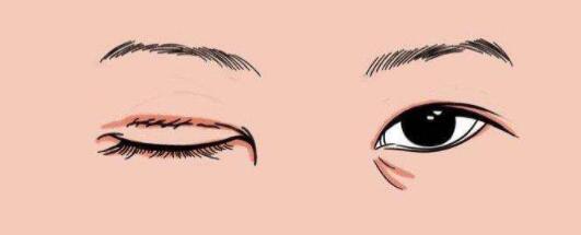 武汉修复双眼皮知名专家排行榜