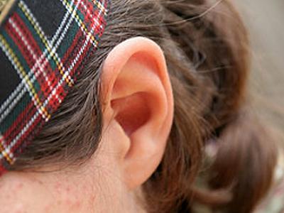 """""""個性""""的杯狀耳雖然不影響聽力"""