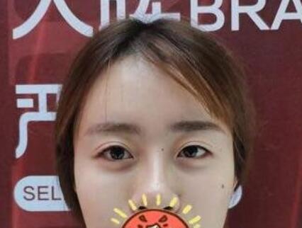 南宁美丽焦点整形焦俊光医生双眼皮修复案例 术后漂亮很多了
