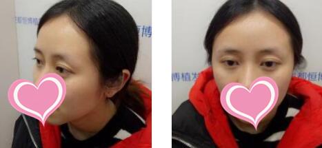 成都恒博医院整形种植眉毛案例 术后14天的变化图分享