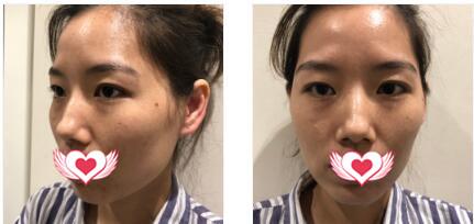 深圳鹏爱秀琪整形做自体脂肪全脸填充案例 术后邂逅美美的自己