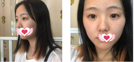 重庆爱思特整形做光子嫩肤案例 术后三天反馈我光滑肌肤+心得