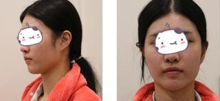 杭州时光整形下颌角切除案例 术后一个月,完全看不出整形过