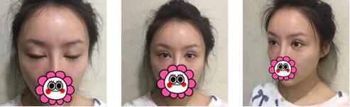 重庆曹阳丽格整形眼部修复案例 现在笑起来很可爱,很值