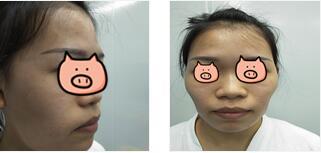 深圳恩吉娜整形张锋医生自体脂肪全面部填充案例 现在的脸型满足