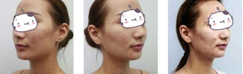 重庆华美整形果酸焕肤案例 痘痘少了后,皮肤也变得比之前好了