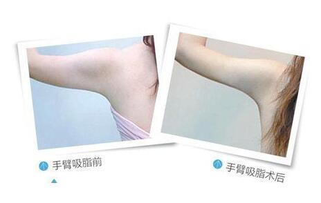 手臂吸脂究竟能瘦多少