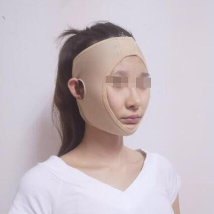 昆明博美整形郑延清医生颧骨整形案例 术后4个月怎么拍照都好看了