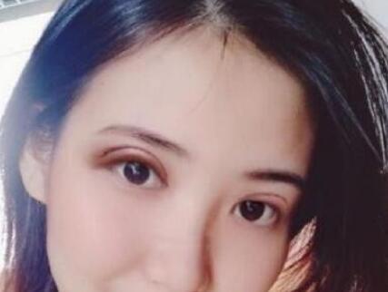 郑州华领整形张昕霞医生双眼皮修复案例 看看术后50多天的我