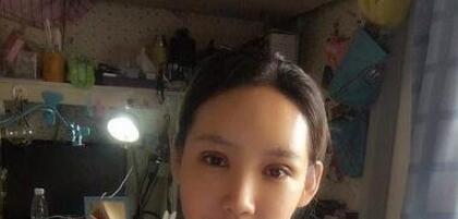 上海伯思立整形余东医生双眼皮修复案例 分享自己的变美历程