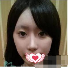 上海华美整形孙慧英做面部提升案例 术后150天立体感瞬间提升